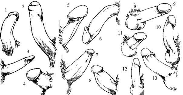 """Può darsi che anticamente l'uomo avesse più organi sessuali: tre piselli, da cui la famosa frase: """"Che cazzo vuoi?"""" (Roberto Benigni - E l'alluce fu, 1996) CREDITS: immagine dal web"""